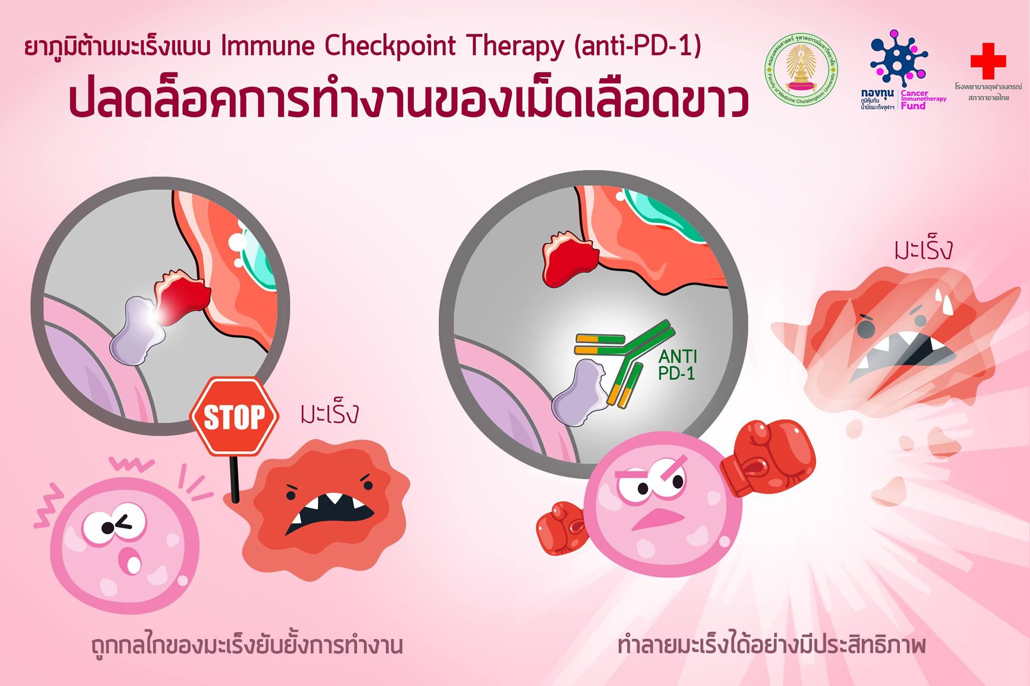 แอนติบอดี้ antibody ฆ่ามะเร็ง