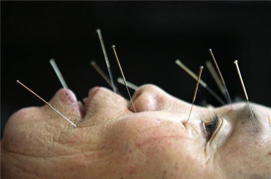 A patient receives acupuncture การแพทย์แผนจีน ซึมเศร้า